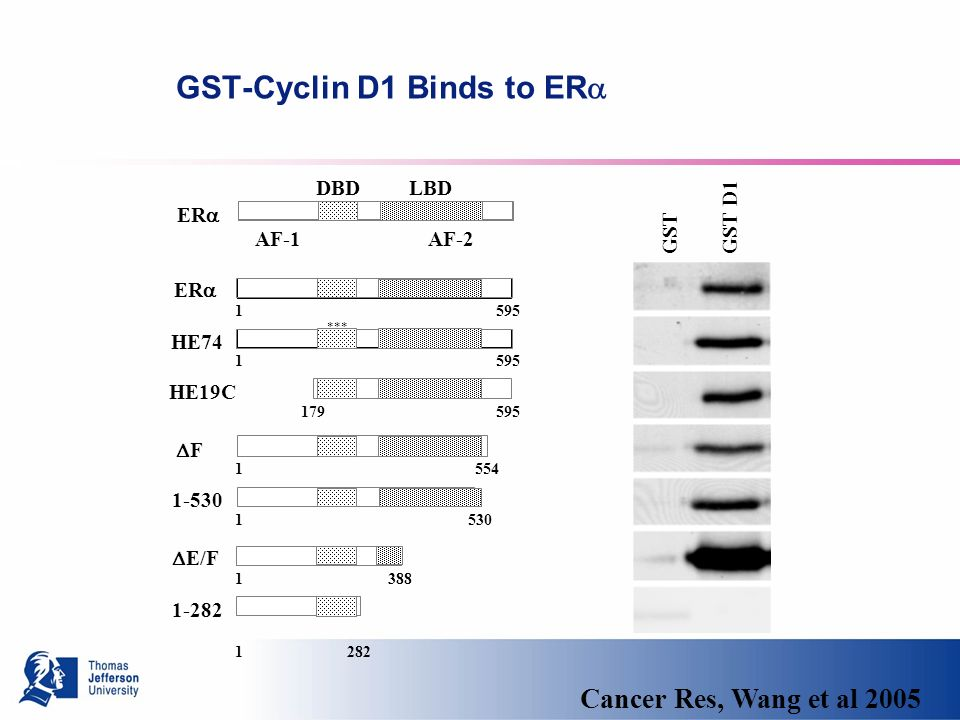 GST-Cyclin D1 Binds to ER GST GST D1 ER HE74 F E/F DBD LBD AF-1 AF-2 HE19C *** Cancer Res, Wang et al 2005