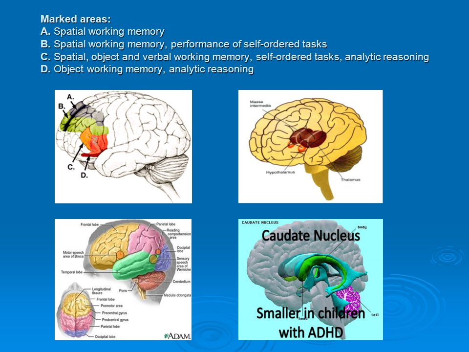 Marked areas: A. Spatial working memory B.