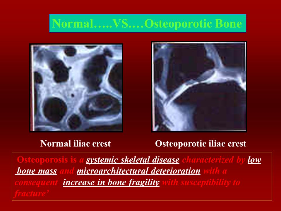 Estrogen and The Skeletal System: With Acute Estrogen Deficiency After The Menopause, There Is Accelerated Bone Loss Which Mounts To About 1-1.5% Loss Of Total Bone Mass/Year.