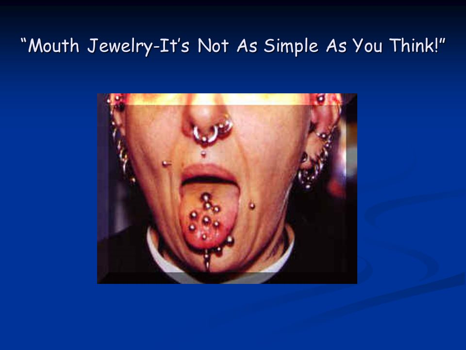 Mouth Jewelry-Its Not As Simple As You Think!