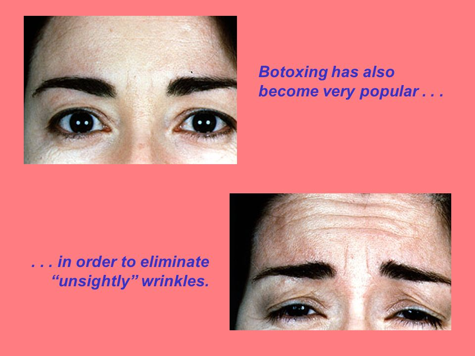 Botoxing has also become very popular...... in order to eliminate unsightly wrinkles.