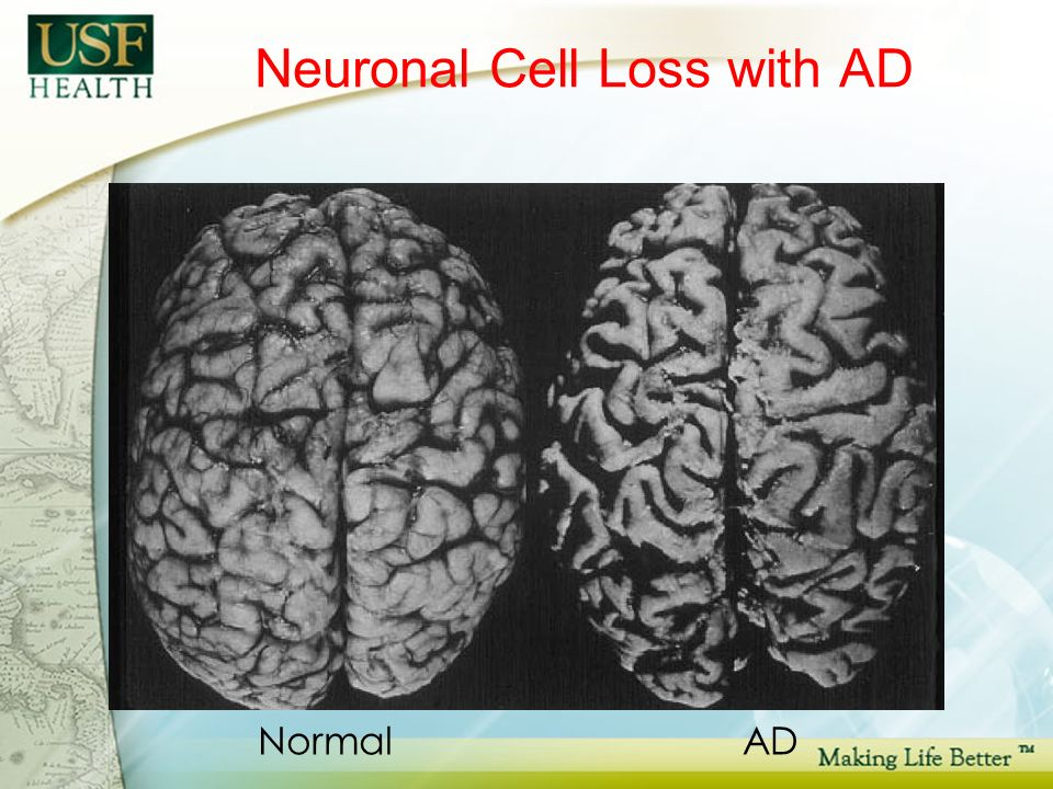 Neuronal Cell Loss with AD NormalAD