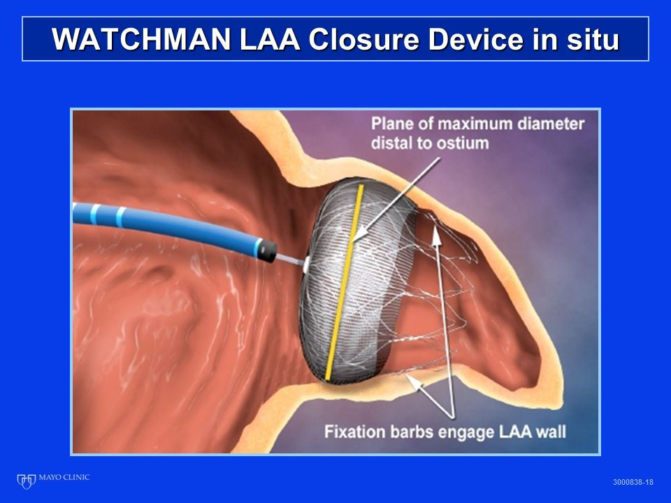 WATCHMAN LAA Closure Device in situ 3000838-18