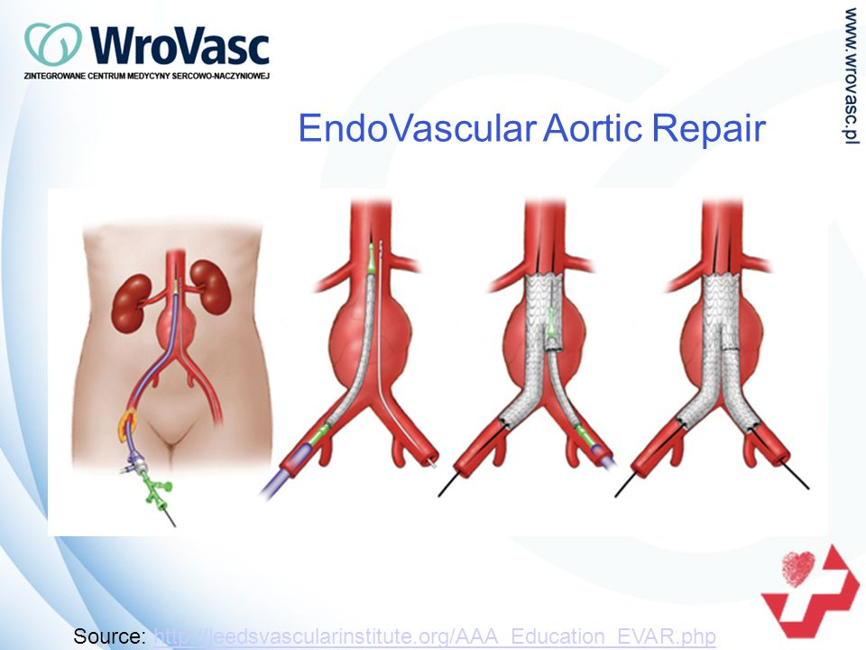 EndoVascular Aortic Repair Source: http://leedsvascularinstitute.org/AAA_Education_EVAR.phphttp://leedsvascularinstitute.org/AAA_Education_EVAR.php