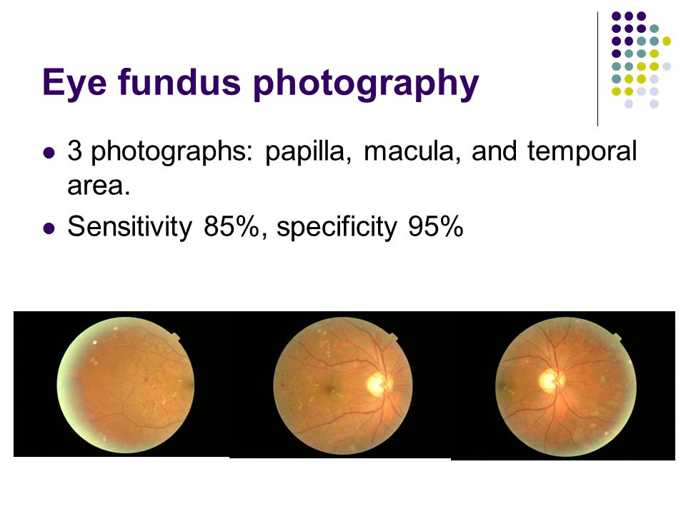 Eye fundus photography 3 photographs: papilla, macula, and temporal area.