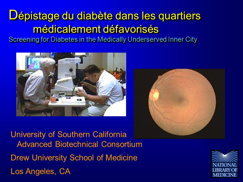 D épistage du diabète dans les quartiers médicalement défavorisés Screening for Diabetes in the Medically Underserved Inner City University of Southern California Advanced Biotechnical Consortium Drew University School of Medicine Los Angeles, CA
