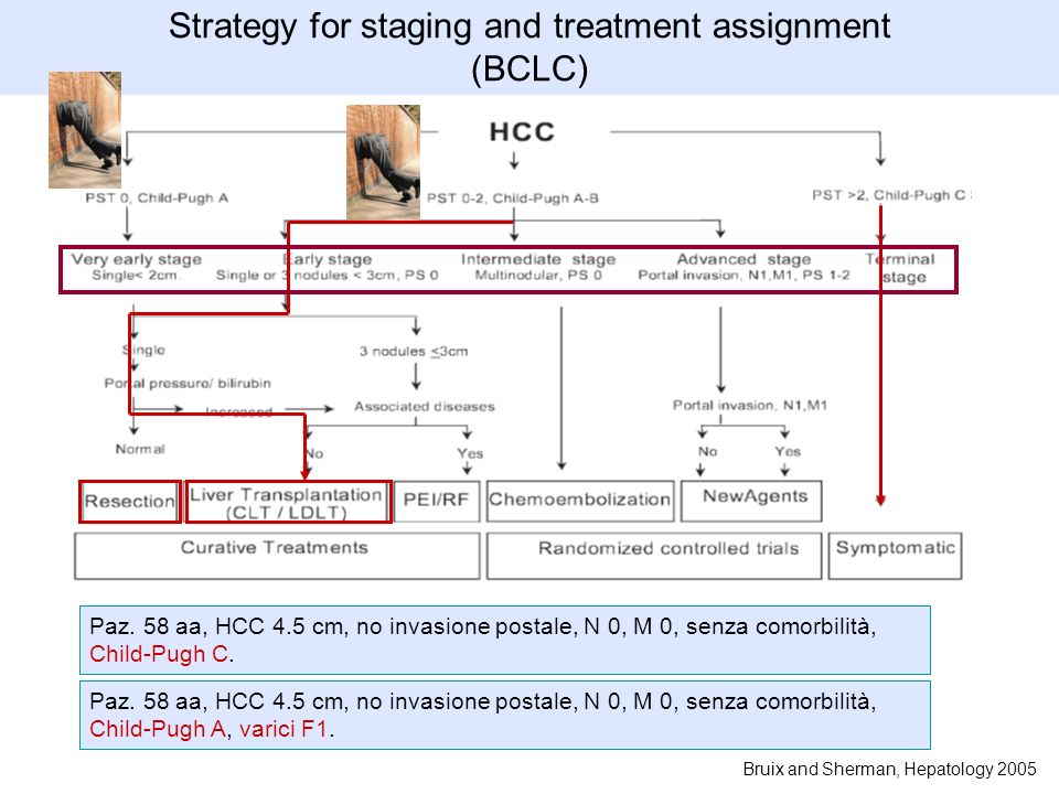 Strategy for staging and treatment assignment (BCLC) Paz.