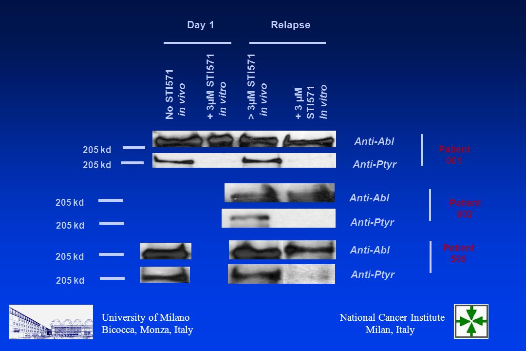 National Cancer Institute Milan, Italy University of Milano Bicocca, Monza, Italy Day 1Relapse No STI571 in vivo > 3µM STI571 in vivo + 3 µM STI571 In vitro + 3µM STI571 in vitro 205 kd Anti-Abl Anti-Ptyr Patient kd Patient 505 Anti-Abl Anti-Ptyr Patient 002 Anti-Abl Anti-Ptyr 205 kd