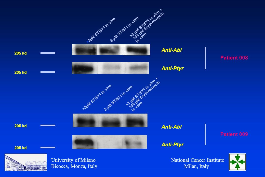 National Cancer Institute Milan, Italy University of Milano Bicocca, Monza, Italy >3 µM STI571 in vivo µM Erythromycin in vitro >3µM STI571 in vivo 3 µM STI571 in vitro 205 kd Patient 008 Anti-Abl Anti-Ptyr Patient 009 Anti-Abl Anti-Ptyr >3 µM STI571 in vivo µM Erythromycin in vitro >3µM STI571 in vivo 3 µM STI571 in vitro 205 kd
