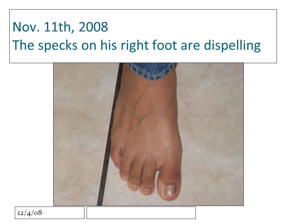 12/4/08 Nov. 11th, 2008 The specks on his right foot are dispelling