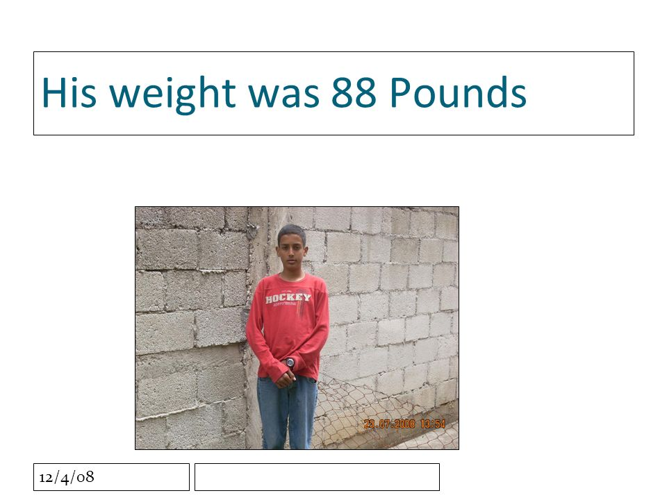 12/4/08 His weight was 88 Pounds