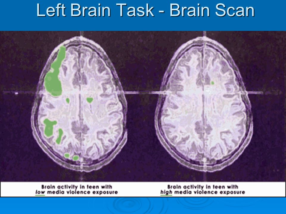 Left Brain Task - Brain Scan