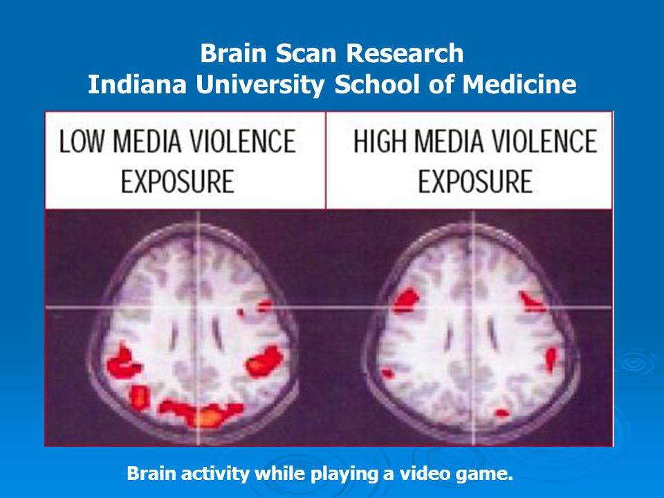Brain Scan Research Indiana University School of Medicine Brain activity while playing a video game.