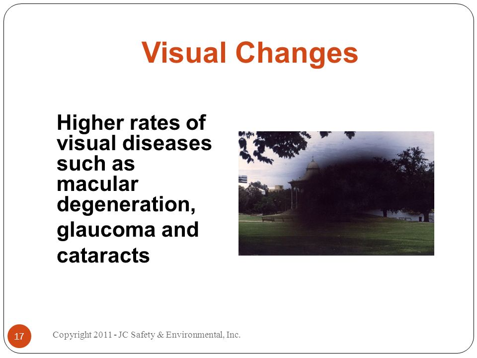 Visual Changes Higher rates of visual diseases such as macular degeneration, glaucoma and cataracts 17 Copyright JC Safety & Environmental, Inc.