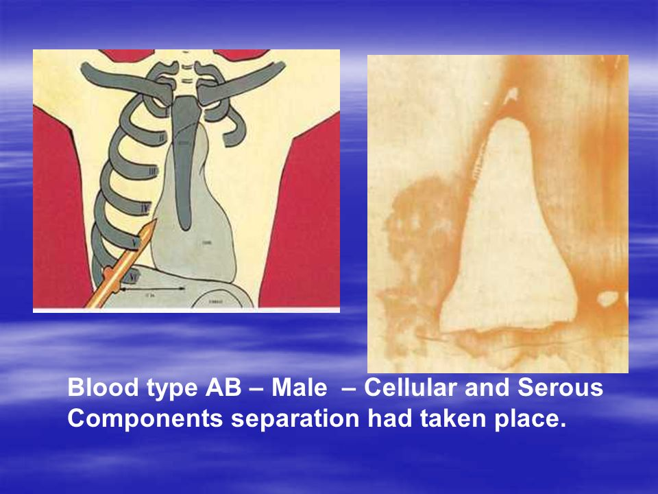 Blood type AB – Male – Cellular and Serous Components separation had taken place.