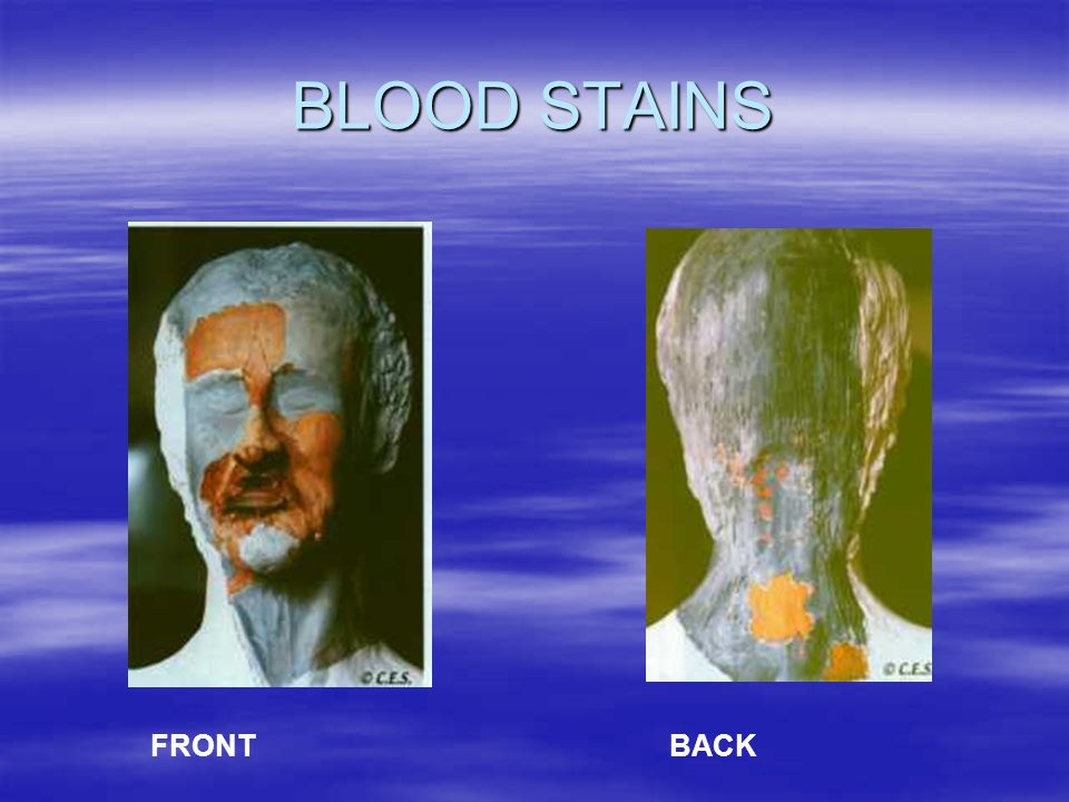 BLOOD STAINS FRONT BACK