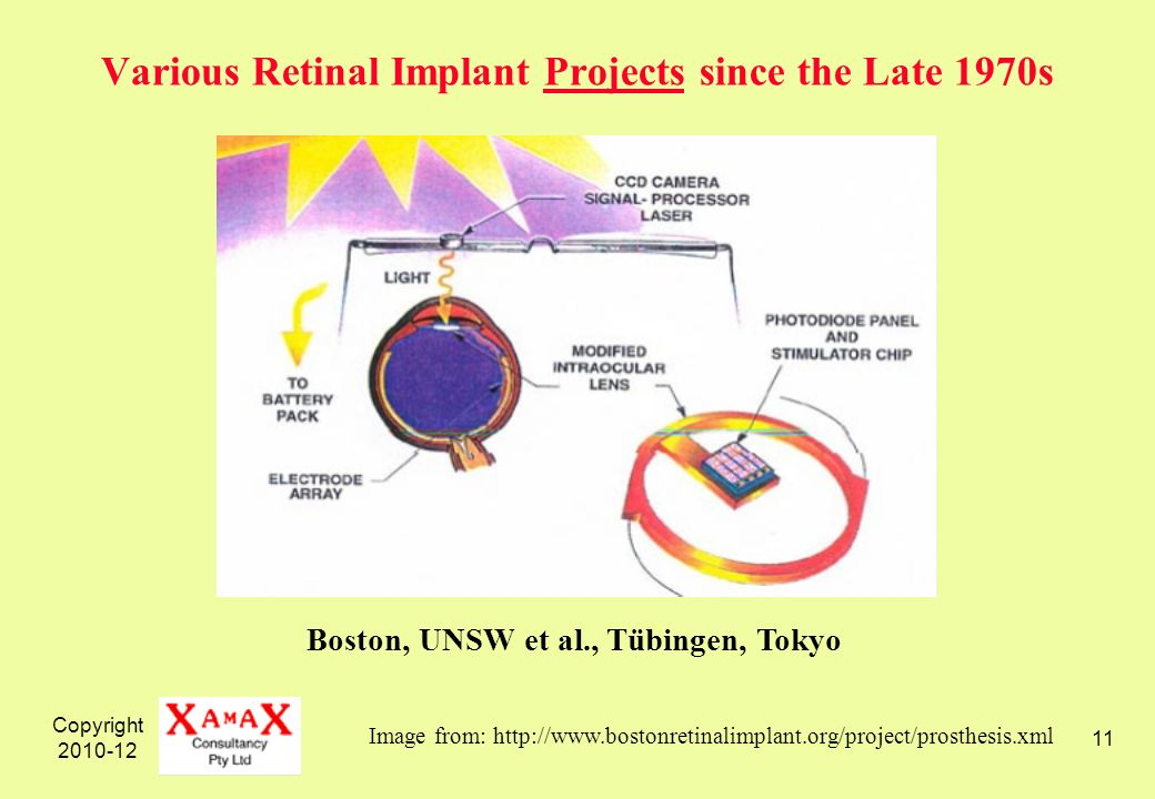 Copyright 2010-12 11 Various Retinal Implant Projects since the Late 1970s Image from: http://www.bostonretinalimplant.org/project/prosthesis.xml Boston, UNSW et al., Tübingen, Tokyo