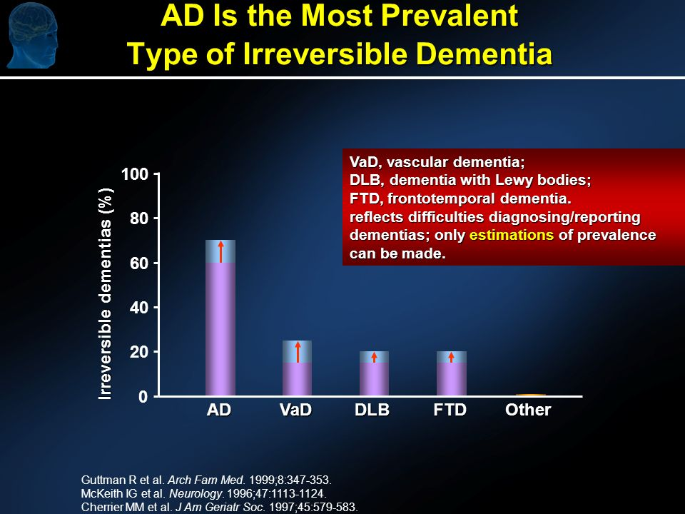 AD Is the Most Prevalent Type of Irreversible Dementia Guttman R et al.