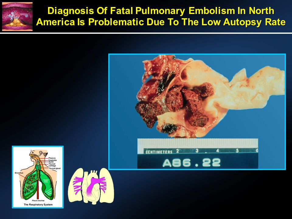 Diagnosis Of Fatal Pulmonary Embolism In North America Is Problematic Due To The Low Autopsy Rate