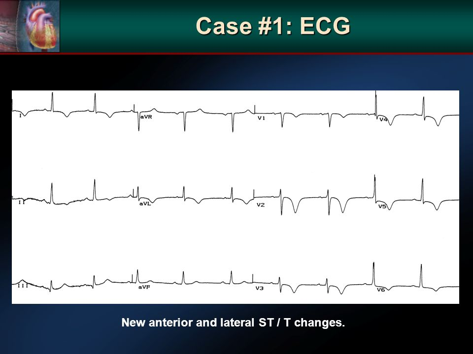New anterior and lateral ST / T changes. Case #1: ECG