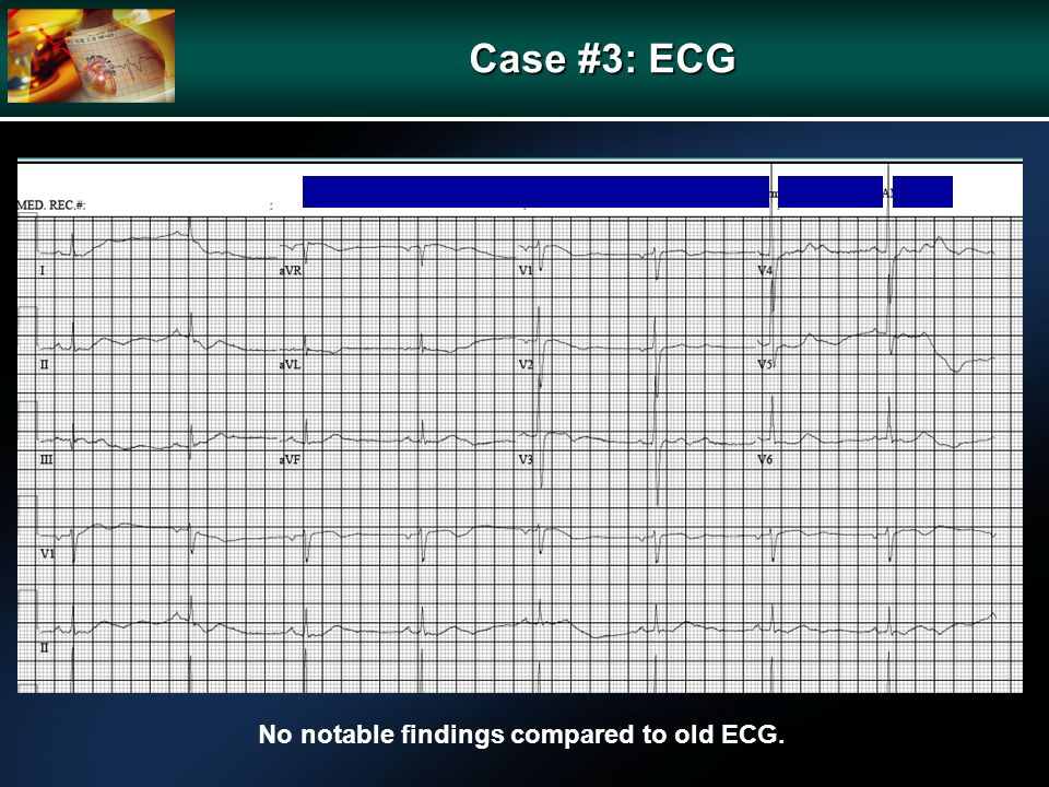 Case #3: ECG No notable findings compared to old ECG.