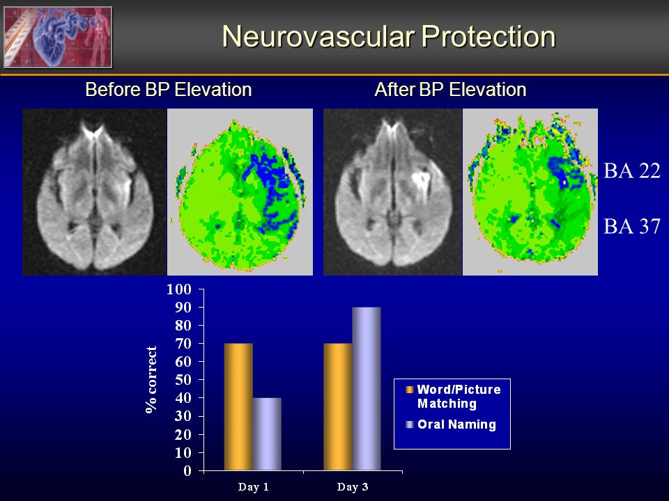 Before BP Elevation After BP Elevation BA 22 BA 37 Neurovascular Protection
