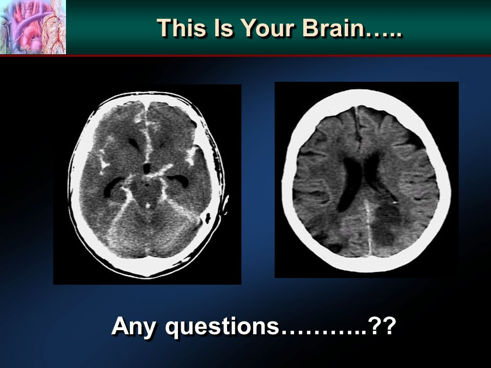 This Is Your Brain….. Any questions………..