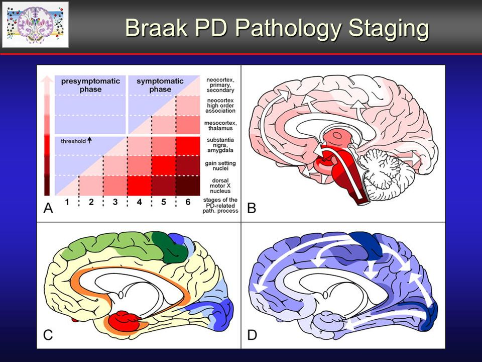 Braak PD Pathology Staging