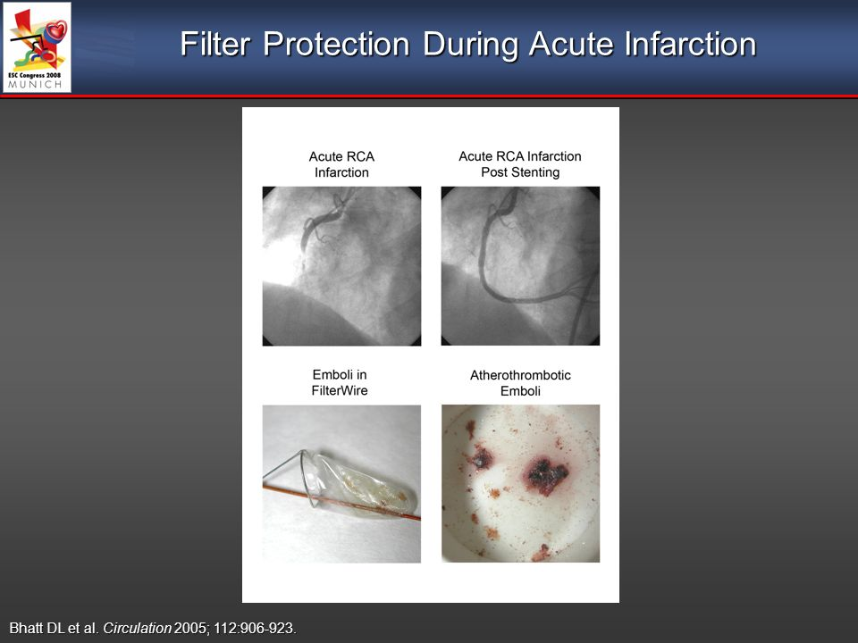 Filter Protection During Acute Infarction Bhatt DL et al. Circulation 2005; 112: