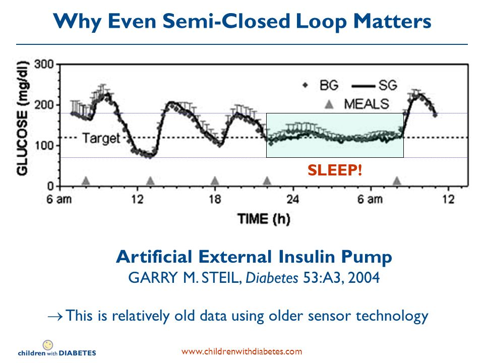 Why Even Semi-Closed Loop Matters Artificial External Insulin Pump GARRY M.