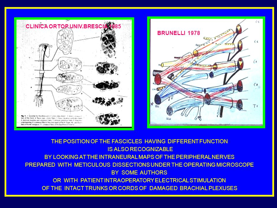 THE POSITION OF THE FASCICLES HAVING DIFFERENT FUNCTION IS ALSO RECOGNIZABLE BY LOOKING AT THE INTRANEURAL MAPS OF THE PERIPHERAL NERVES PREPARED WITH METICULOUS DISSECTIONS UNDER THE OPERATING MICROSCOPE BY SOME AUTHORS OR WITH PATIENT INTRAOPERATORY ELECTRICAL STIMULATION OF THE INTACT TRUNKS OR CORDS OF DAMAGED BRACHIAL PLEXUSES CLINICA ORTOP.UNIV.BRESCIA 1985 BRUNELLI 1978