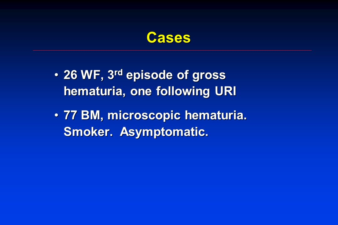 Cases 26 WF, 3 rd episode of gross hematuria, one following URI26 WF, 3 rd episode of gross hematuria, one following URI 77 BM, microscopic hematuria.