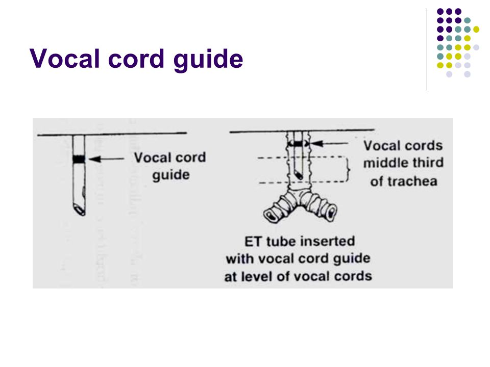 Vocal cord guide