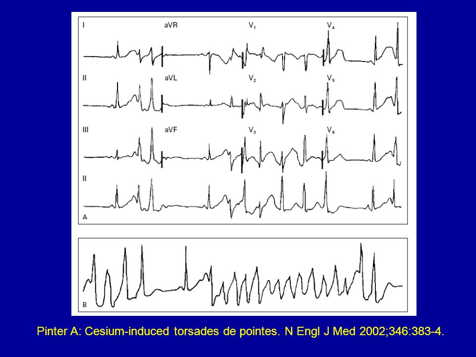 Cesium: Cardiac Toxin and Radiological Threat Bob Hoffman