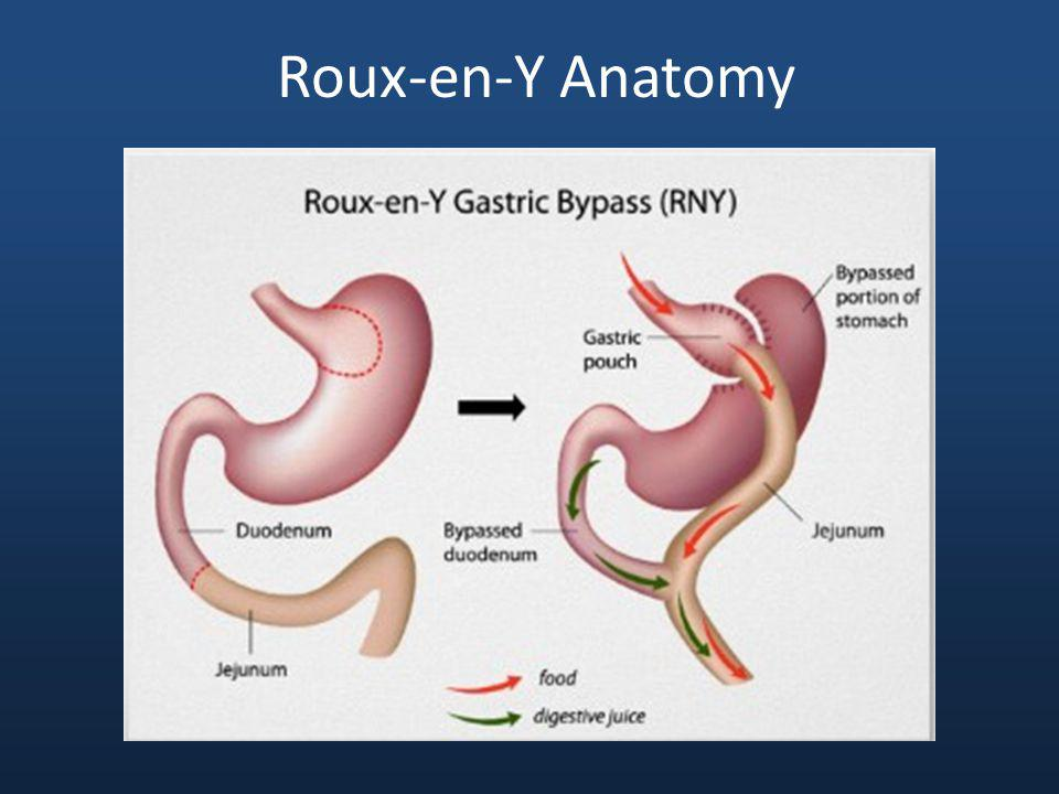 Gi Complications Of Gastric Bypass Caroline R Tadros Md May 15 Th