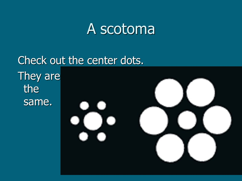 A scotoma Check out the center dots. Check out the center dots.