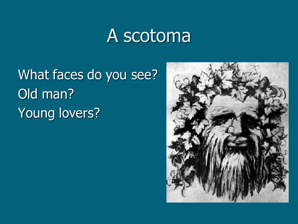 A scotoma What faces do you see Old man Young lovers