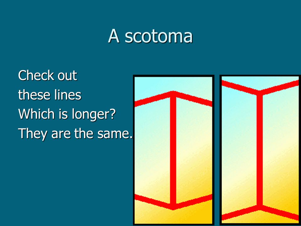 A scotoma Check out these lines Which is longer They are the same.