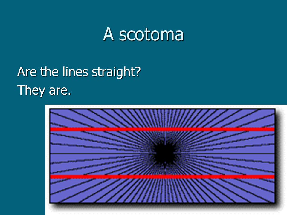 A scotoma Are the lines straight They are.