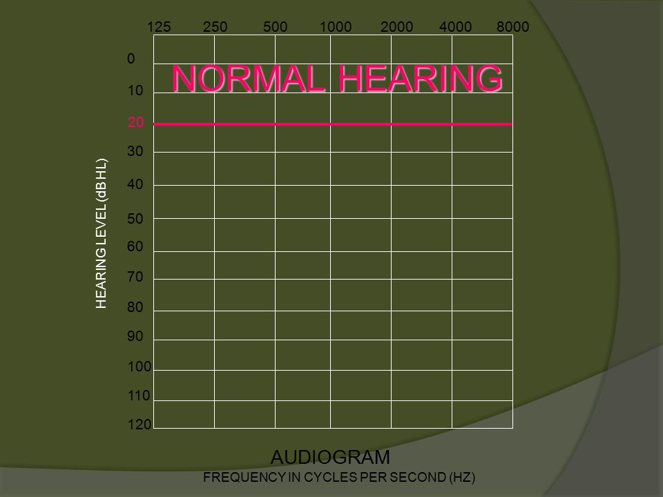 z v p h g ch sh l r o a s f th jmdb n ng e i u AUDIOGRAM OF FAMILIAR SOUNDS FREQUENCY IN CYCLES PER SECOND (HZ) 10 0 30 40 50 60 70 80 90 100 110 120 1252505001000200040008000 HEARING LEVEL (dB HL) 20