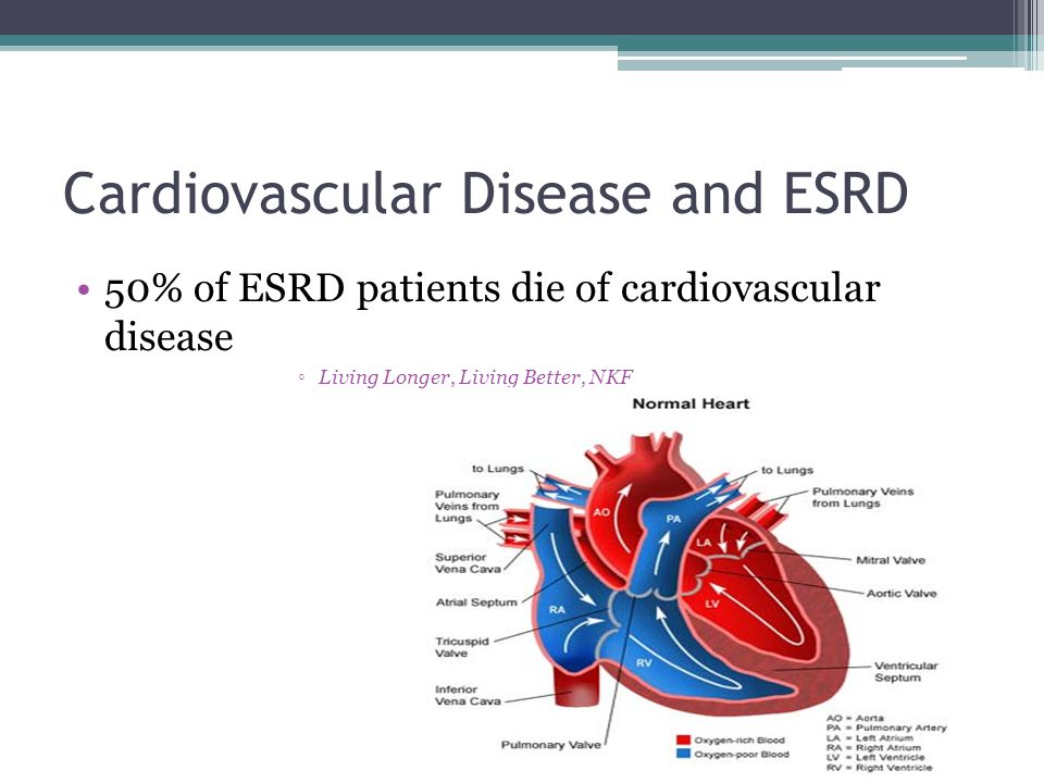 Cardiovascular Disease and ESRD 50% of ESRD patients die of cardiovascular disease ◦Living Longer, Living Better, NKF