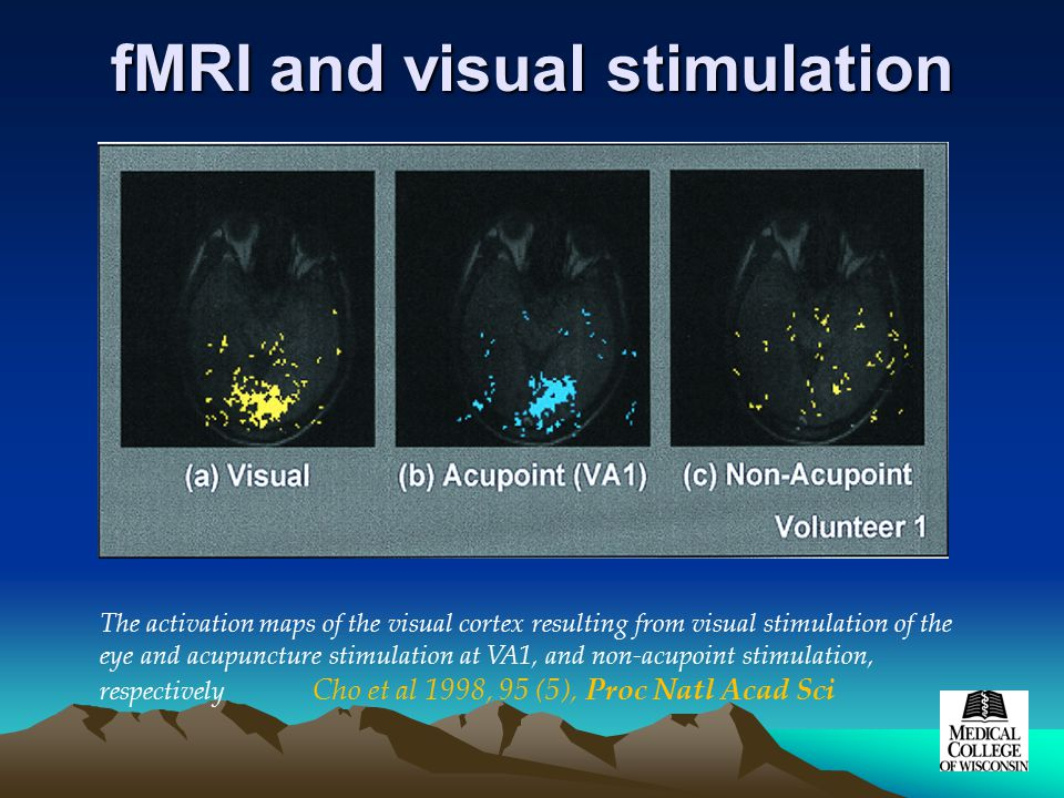 fMRI and visual stimulation The activation maps of the visual cortex resulting from visual stimulation of the eye and acupuncture stimulation at VA1, and non-acupoint stimulation, respectively Cho et al 1998, 95 (5), Proc Natl Acad Sci