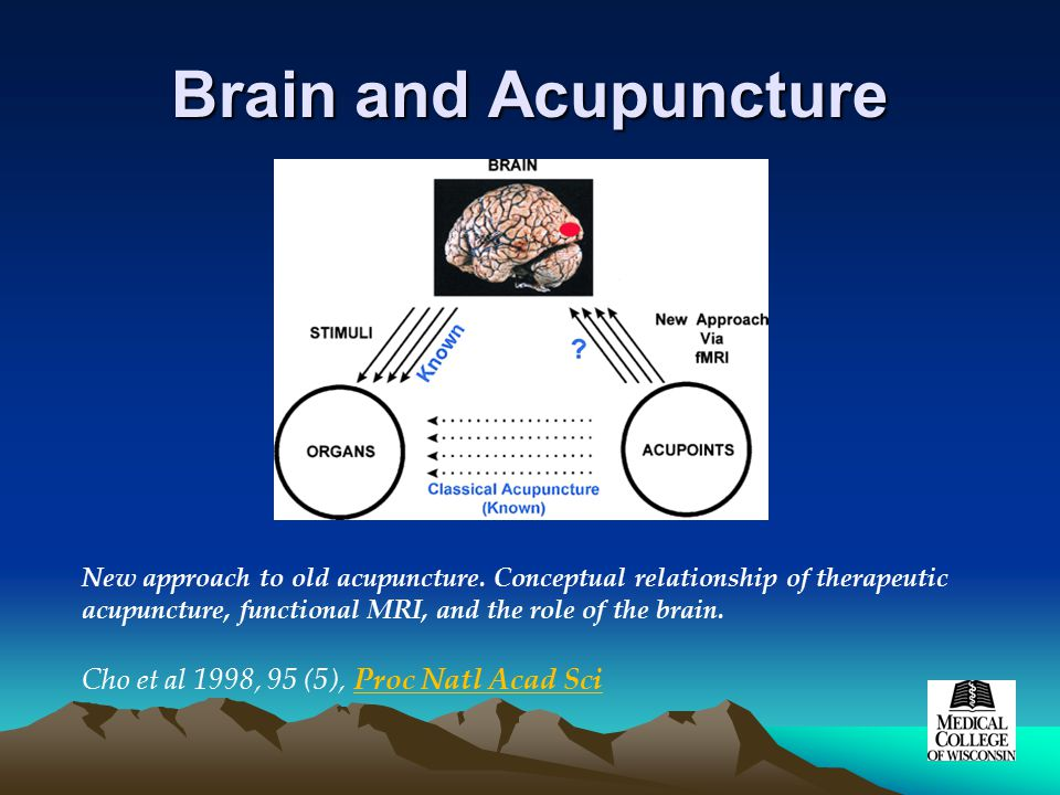 Brain and Acupuncture New approach to old acupuncture.