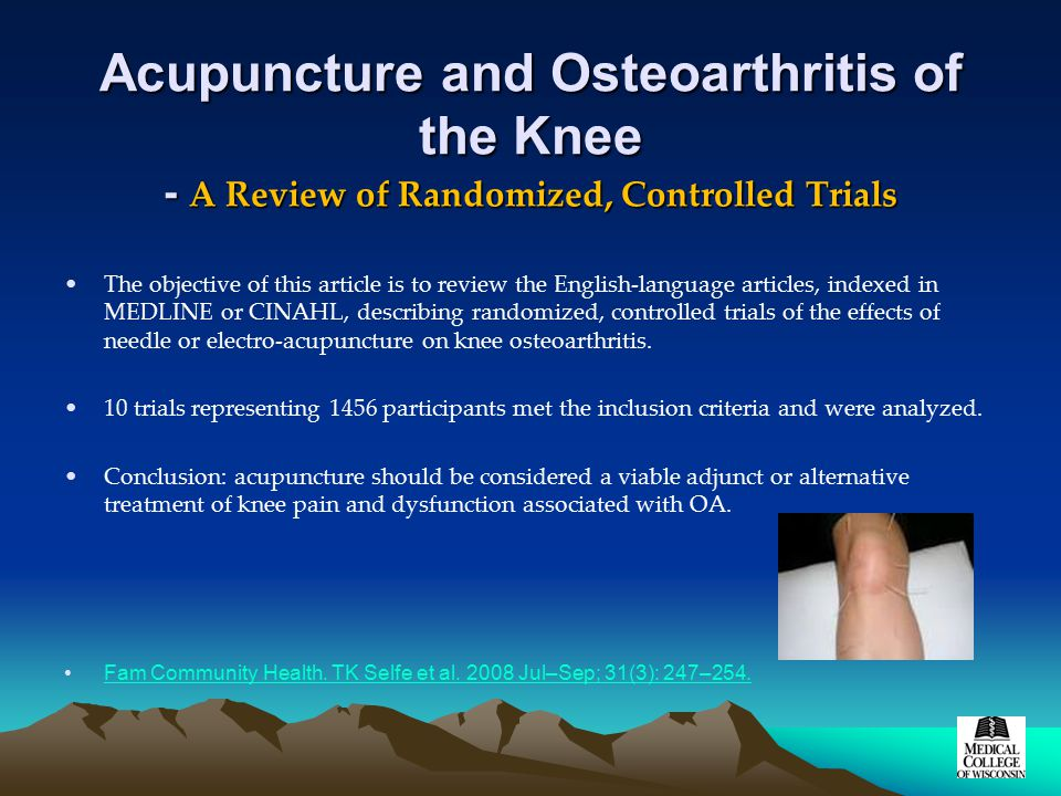 Acupuncture and Osteoarthritis of the Knee - A Review of Randomized, Controlled Trials The objective of this article is to review the English-language articles, indexed in MEDLINE or CINAHL, describing randomized, controlled trials of the effects of needle or electro-acupuncture on knee osteoarthritis.