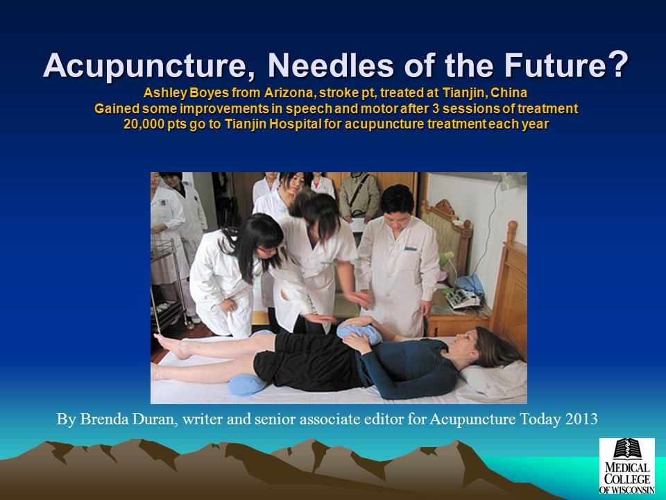 Acupuncture, Needles of the Future .