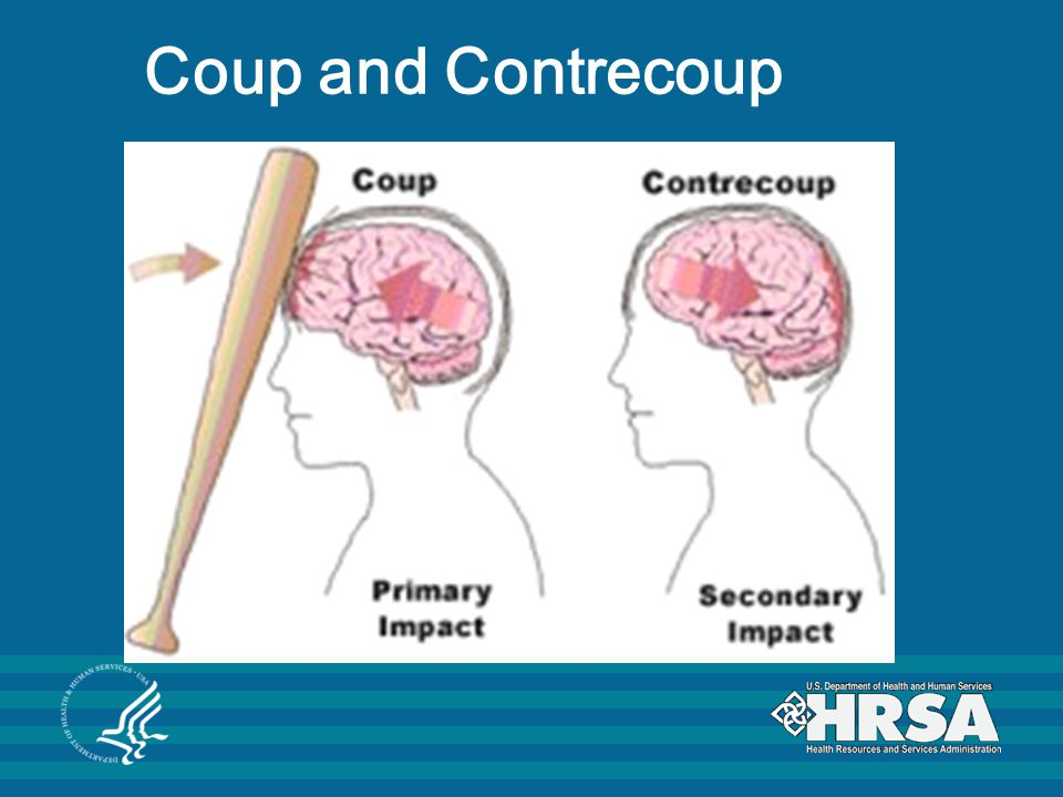 Coup and Contrecoup