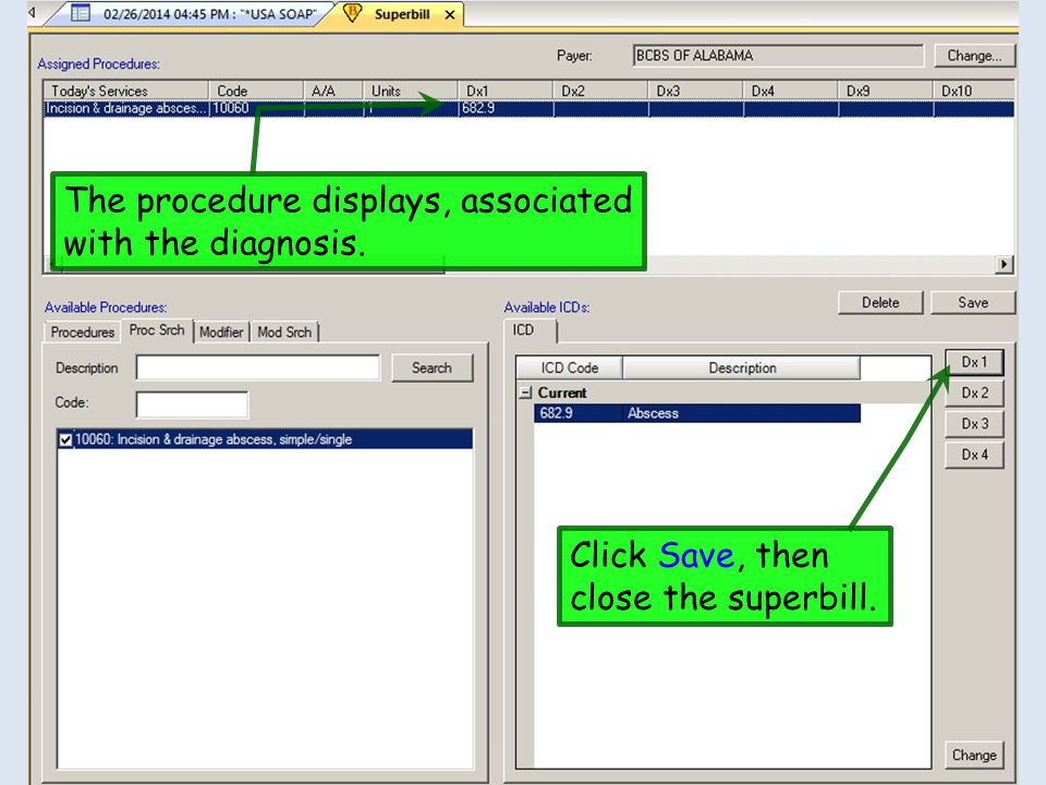 The procedure displays, associated with the diagnosis. Click Save, then close the superbill.