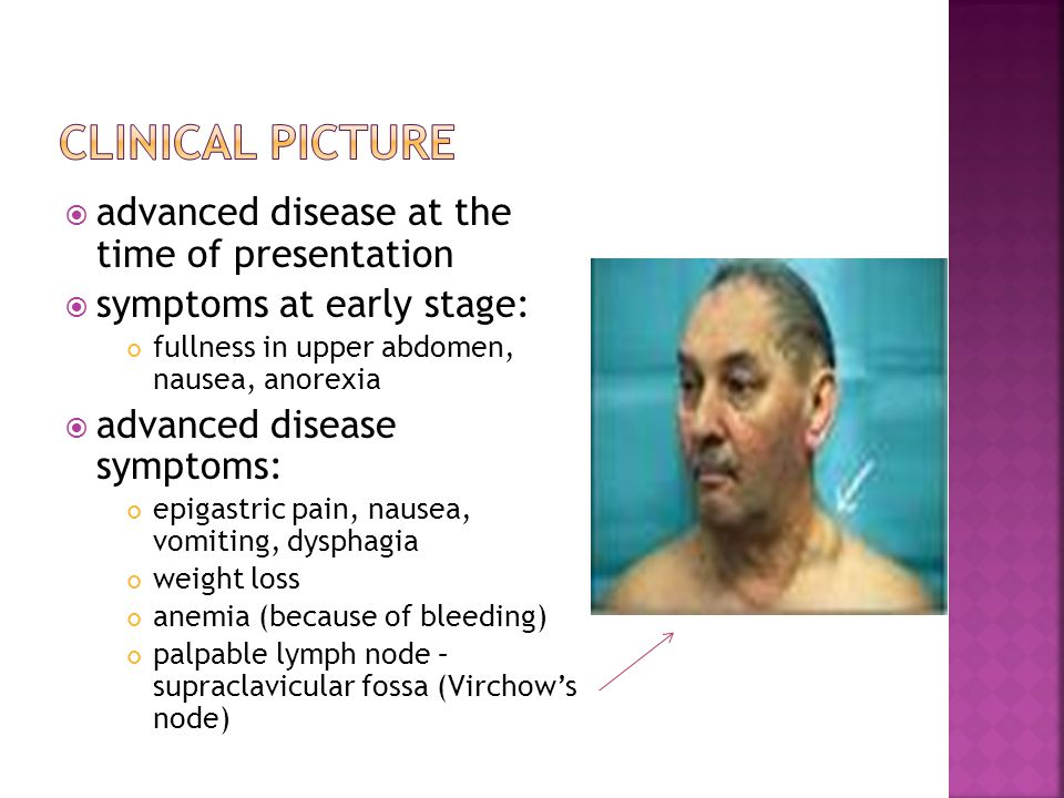  advanced disease at the time of presentation  symptoms at early stage: fullness in upper abdomen, nausea, anorexia  advanced disease symptoms: epigastric pain, nausea, vomiting, dysphagia weight loss anemia (because of bleeding) palpable lymph node – supraclavicular fossa (Virchow's node)