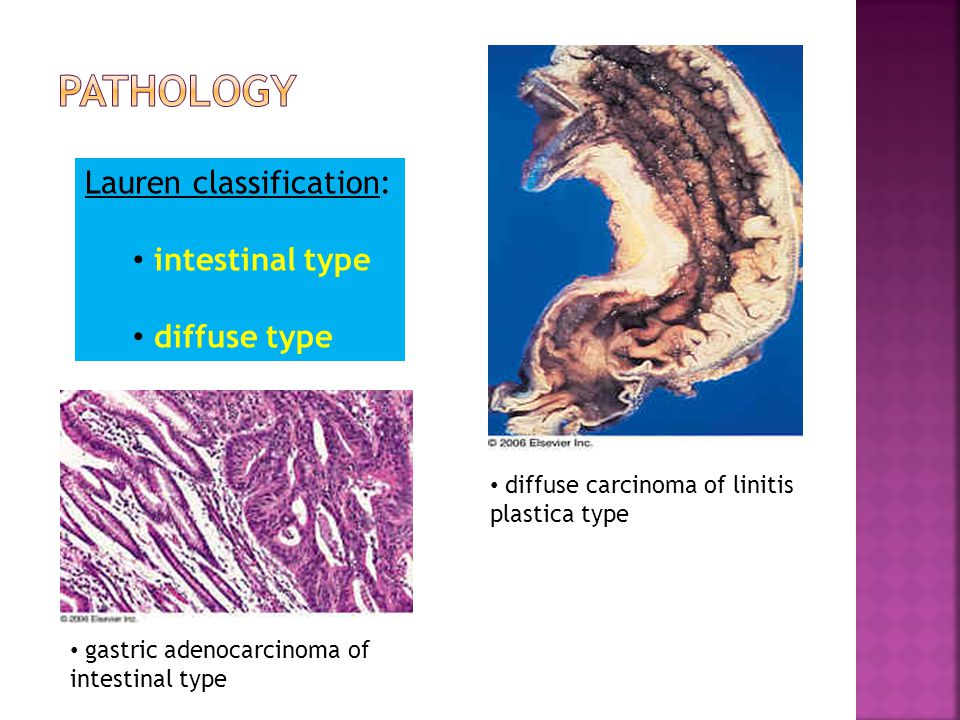 Lauren classification: intestinal type diffuse type diffuse carcinoma of linitis plastica type gastric adenocarcinoma of intestinal type