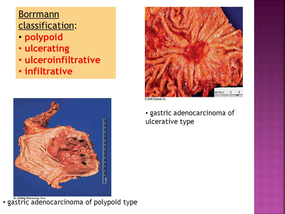 Borrmann classification: polypoid ulcerating ulceroinfiltrative infiltrative gastric adenocarcinoma of polypoid type gastric adenocarcinoma of ulcerative type